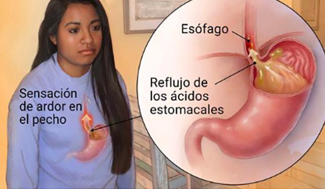 diabetes dieta para el reflujo esofágico