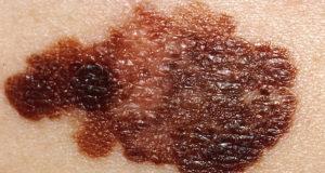 cáncer de piel Melanoma