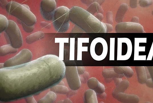 tifoidea