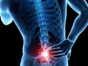 Lumbar dolor espalda